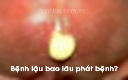 benh-lau-bao-lau-thi-phat-benh-2